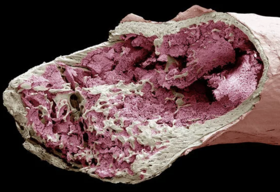 Как стать донором костного мозга