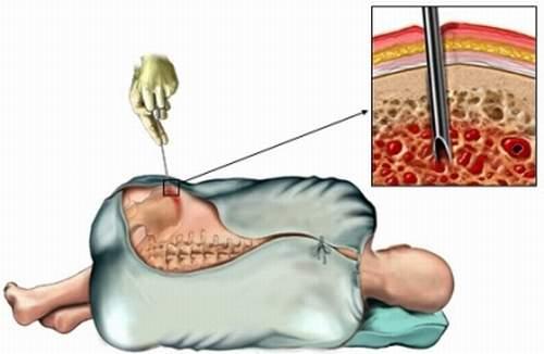 как берется костный мозг для донорства