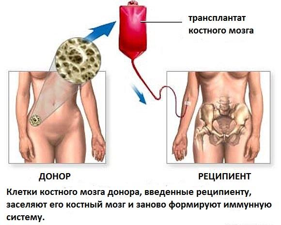 как происходит донорство костного мозга