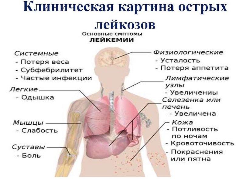 Острый лейкоз: прогноз для больного