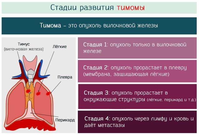 стадии развития тимомы