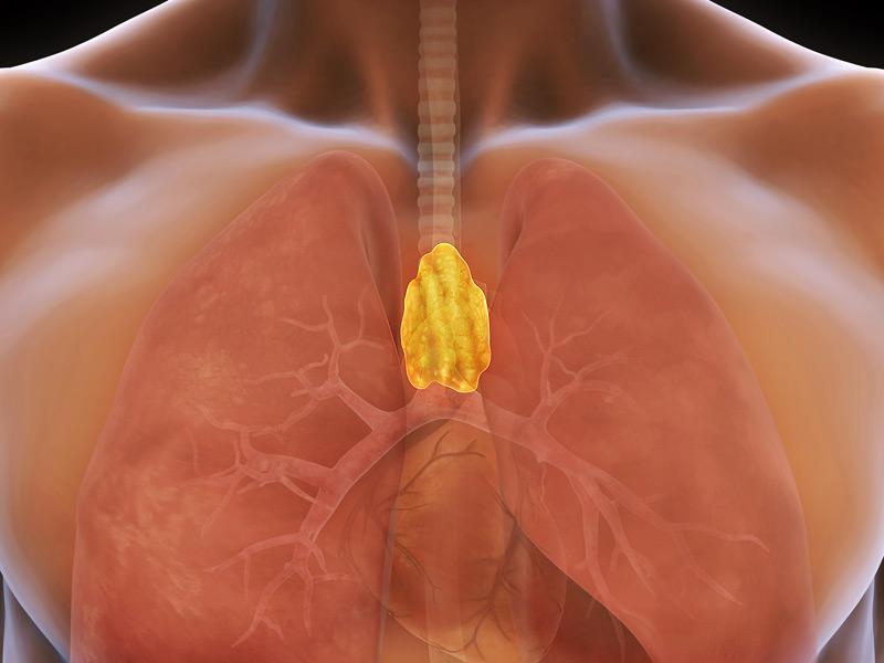 Опухоль вилочковой железы
