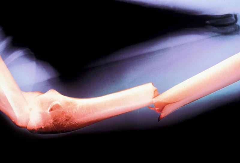 Регенерация костной ткани: суть процесса