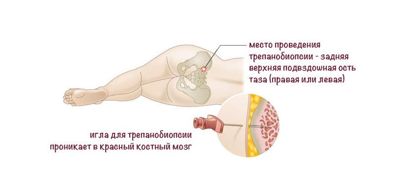 что такое трепанобиопсия костного мозга