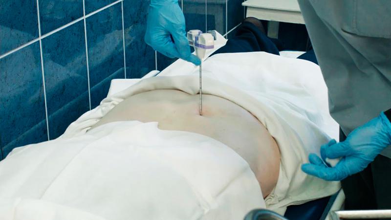 техника проведения трепанобиопсии