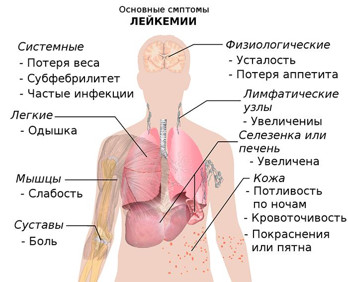 признаки лейкоза у взрослых