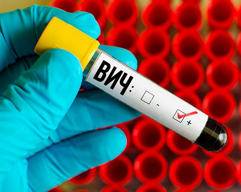 Иммунитет к ВИЧ: существует ли он?