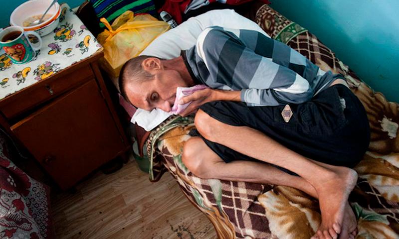 мужчина страдает туберкулезом