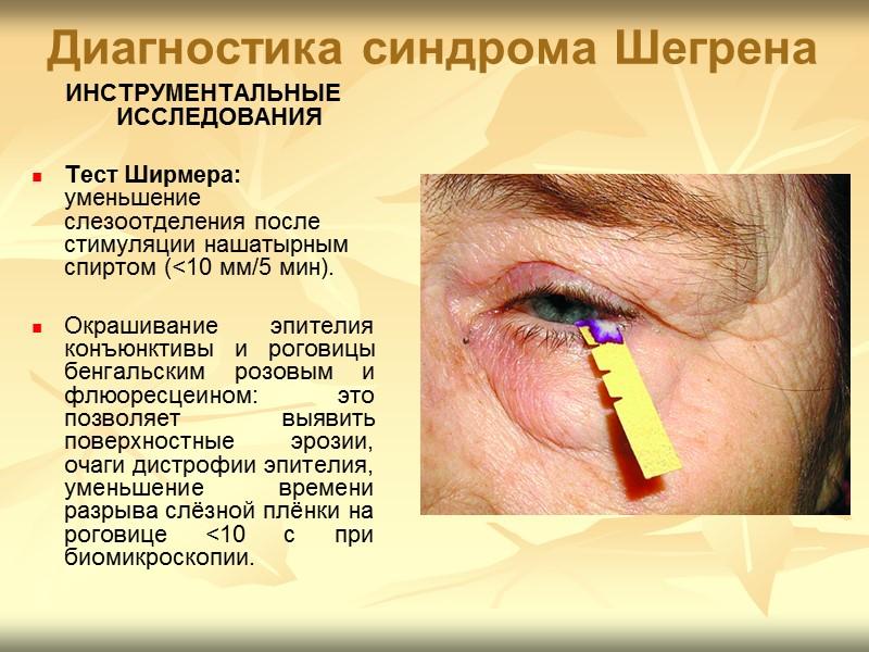 синдром шегрена