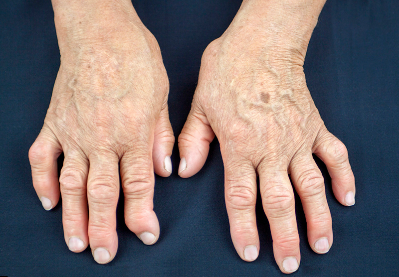 Ревматоидный артрит: что делать, если вы заболели
